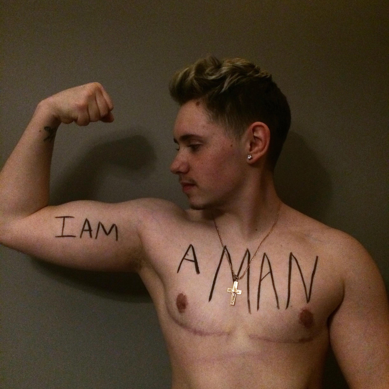 Jay Moch Transgender Gender Umwandlung Geschlechtsumwandlung Oberkörper